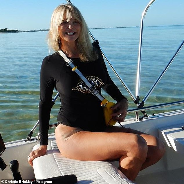 A long comer: She revealed the news on Instagram earlier this month, after a successful procedure, writing, `` I hit my thigh in a ski helicopter crash in the countryside several years ago. ''